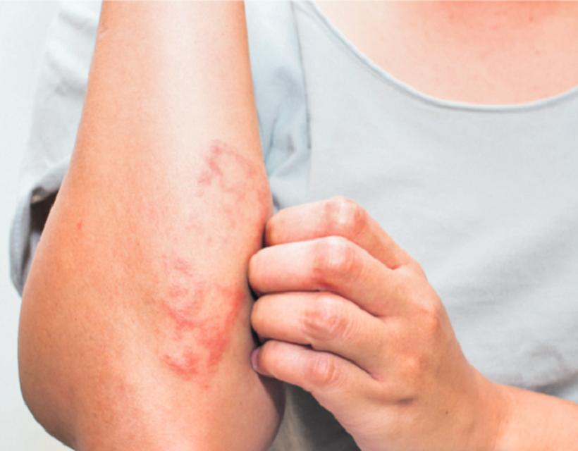 Atópiás dermatitis – Wikipédia